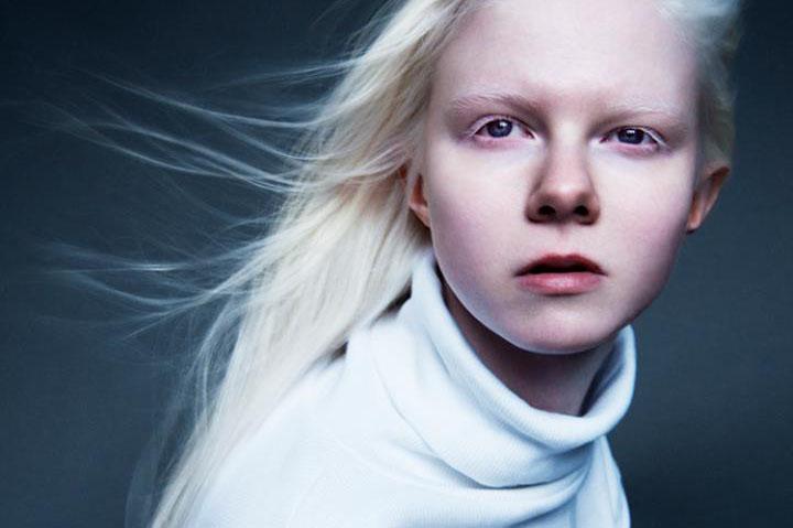Andrea (23) har albinisme: Dårleg brunfarge er ikkje det største ...
