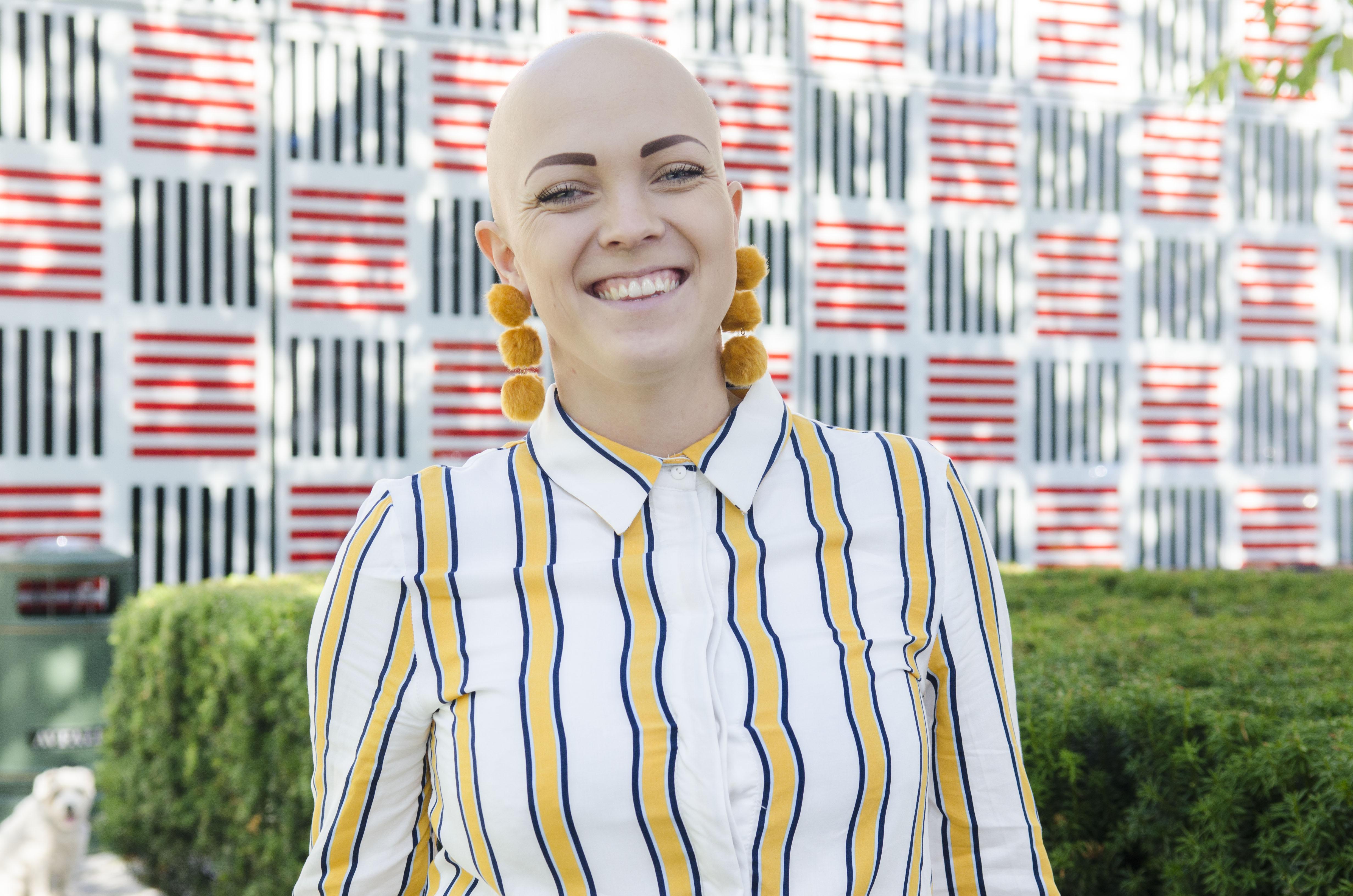 – Det er sjølvsagt dagar då eg skulle ynskje at eg skilte seg mindre ut, seier Maria Saxegaard, som fekk diagnosen alopecia som 19-åring.