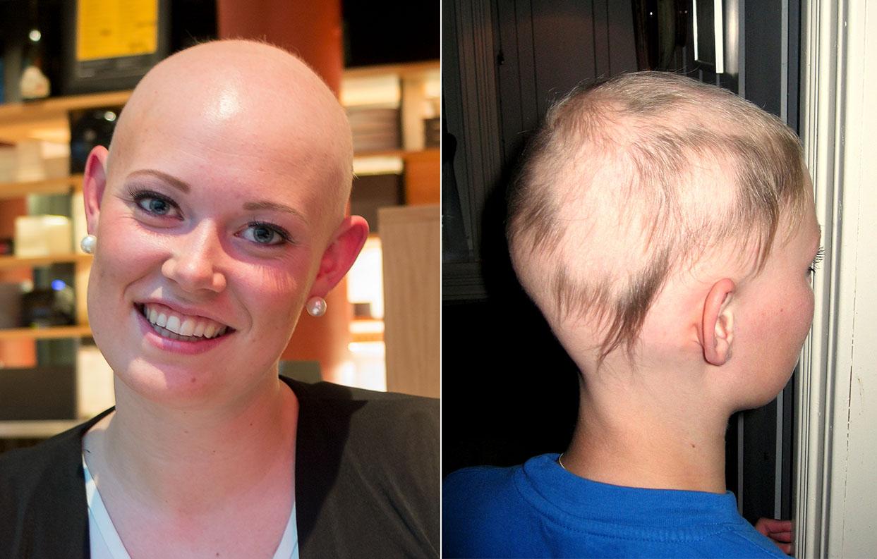 – Ein kan seie at det berre er hår, men det handlar om identitet. Veldig mange vil ikkje vere annleis og bli sett på som annleis, forklarar leiar i Alopeciaforeningen Oda Nybakken Molstad. Biletet til høgre er frå då ho mista håret som 13-åring.